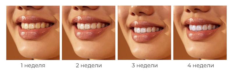 Электрическая зубная щетка Soocas X3U Mint robot4home.ru