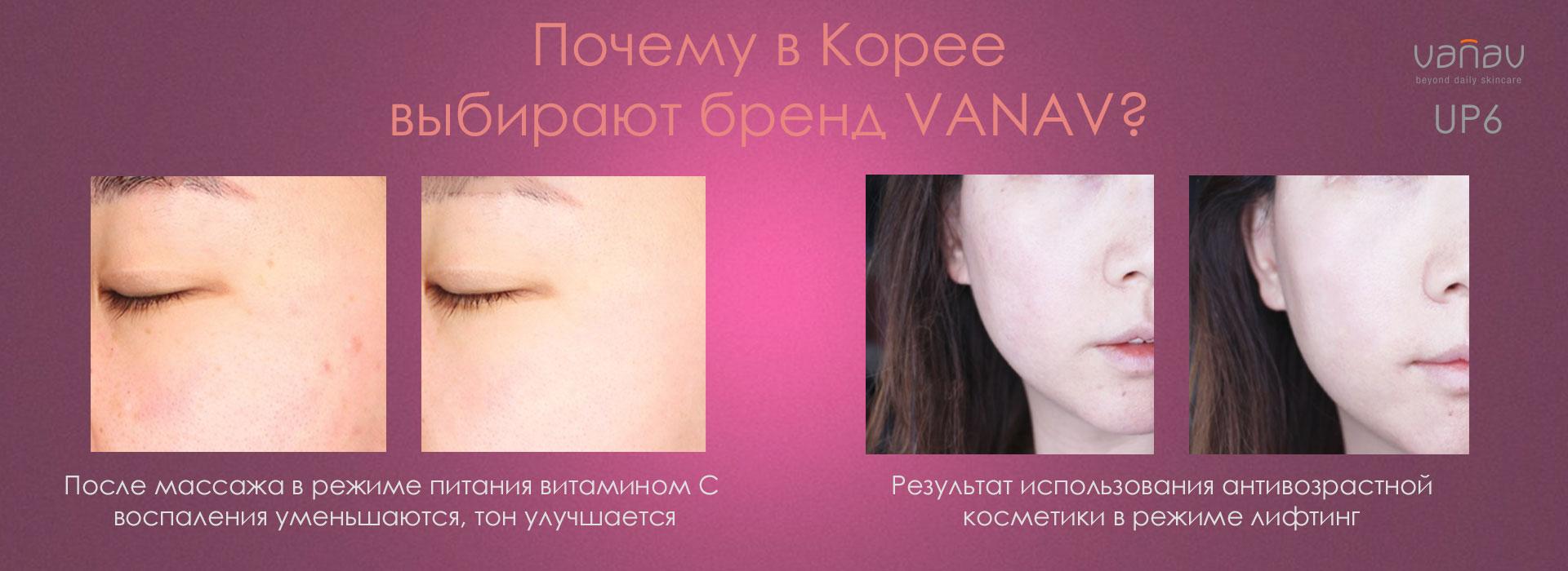 Результаты использования Массажера для лица VANAV UP6