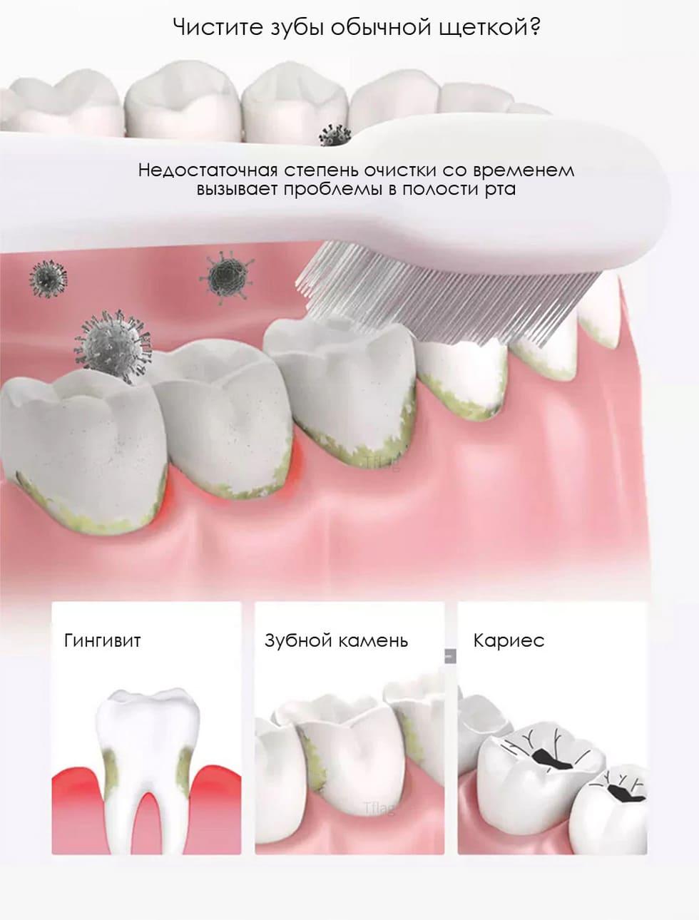 Беспроводной ирригатор Xiaomi Zhibai Wireless Tooth Cleaning XL1 (белый) robot4home.ru